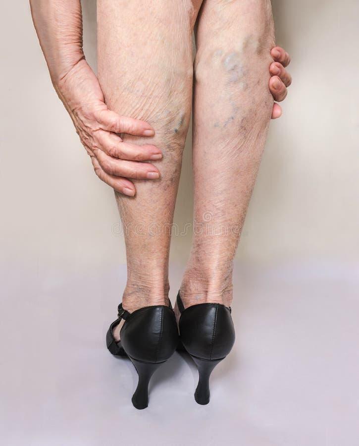 Vene dolorose del ragno e varicose sulle gambe femminili Donna in talloni che massaggia i piedini faticosi immagine stock