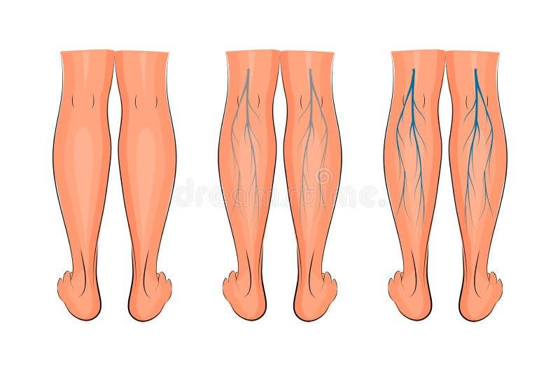 Vene varicose delle estremità inferiori illustrazione vettoriale