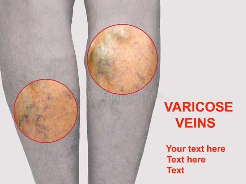 Vene varicose dolorose, vene del ragno, variche su una gamba severamente colpita Invecchiando, malattia di vecchiaia, problema es royalty illustrazione gratis