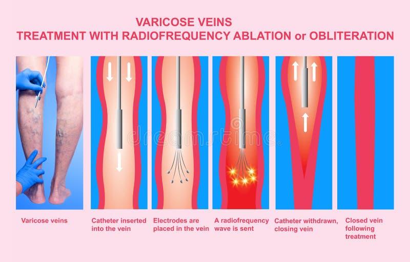 Vene varicose e trattamento con ablazione di radiofrequenza illustrazione di stock