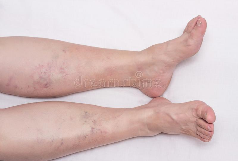 Vene varicose nelle gambe di una donna, di un fondo bianco, vene varicose sui vitelli delle gambe ed abbassare le gambe, phlebeur immagini stock libere da diritti