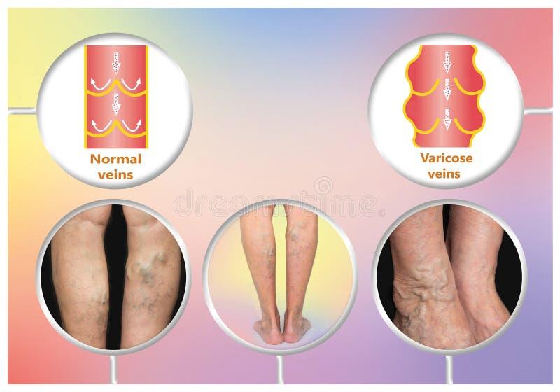 Vene varicose su una gamba senior femminile illustrazione vettoriale