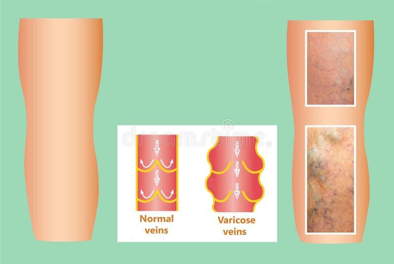 Vene varicose su una gamba senior femminile illustrazione di stock