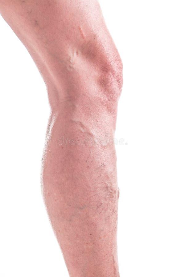 Vene varicose sulle gambe della donna immagini stock libere da diritti