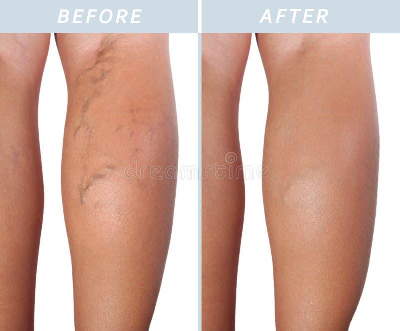 Vene varicose sulle gambe dopo e prima del trattamento immagine stock libera da diritti
