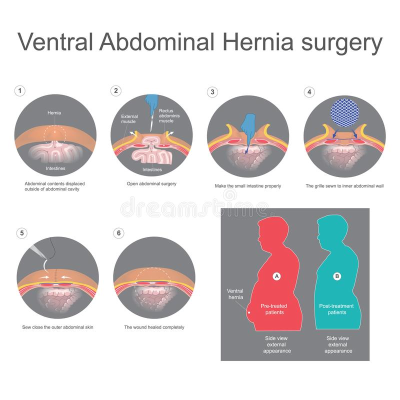 Ventral hernia is a bulge of tissues through an opening of weakness within your abdominal wall muscles. Info graphic vector. royalty free illustration