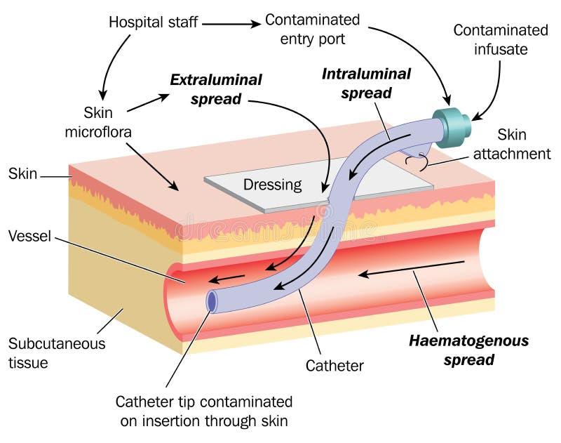 Verbreitung der Infektion über einen Cannula lizenzfreie abbildung