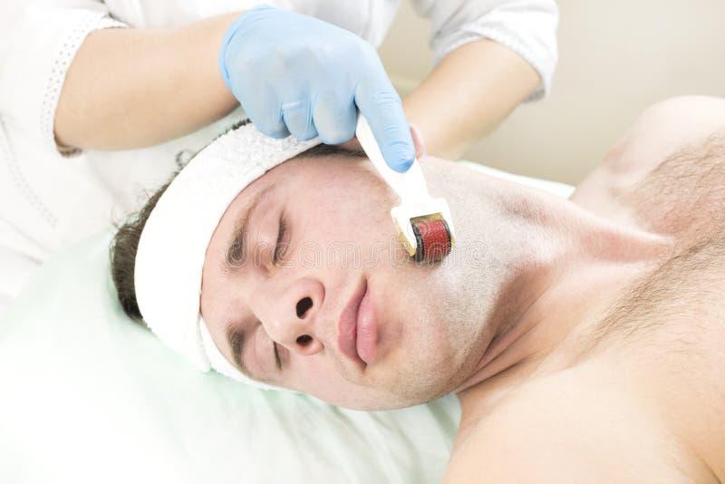 Verfahren der Verjüngung und Reinigung der Haut der modernen medizinisches Instrument derma Rolle lizenzfreies stockfoto