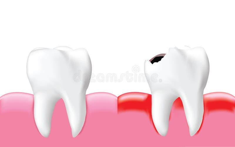 Verfallen Sie Zahn mit Entzündung und gesunden Zahn, stock abbildung