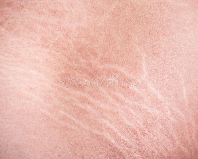 Vergetures de peau sur la cuisse photos libres de droits