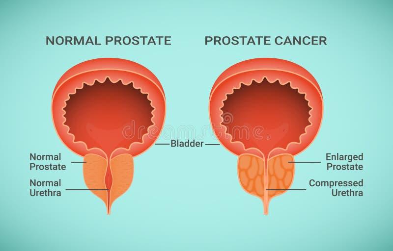 Vergleich der gesunder und Krebs-Prostataillustration stock abbildung