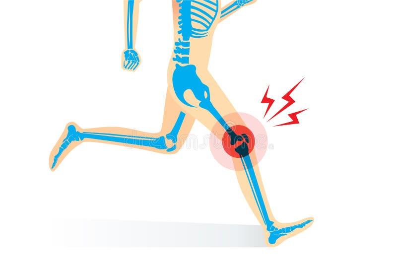 Verletzung des Knieknochens und -beines beim Laufen vektor abbildung