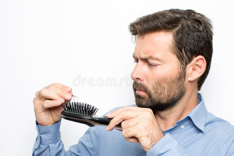 Verlierendes Haar des Mannes lizenzfreies stockbild