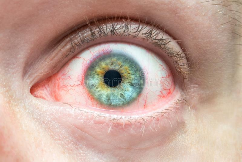 Vermoeit het geïrriteerde rode oog van mensen dicht omhoog, problemen met bloedvat, chronische bindvliesontsteking royalty-vrije stock foto