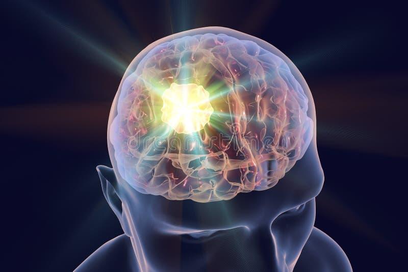 Vernietiging van hersenentumor royalty-vrije illustratie