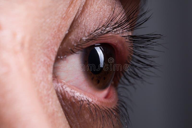 Verrücktes Auge lizenzfreie stockfotos