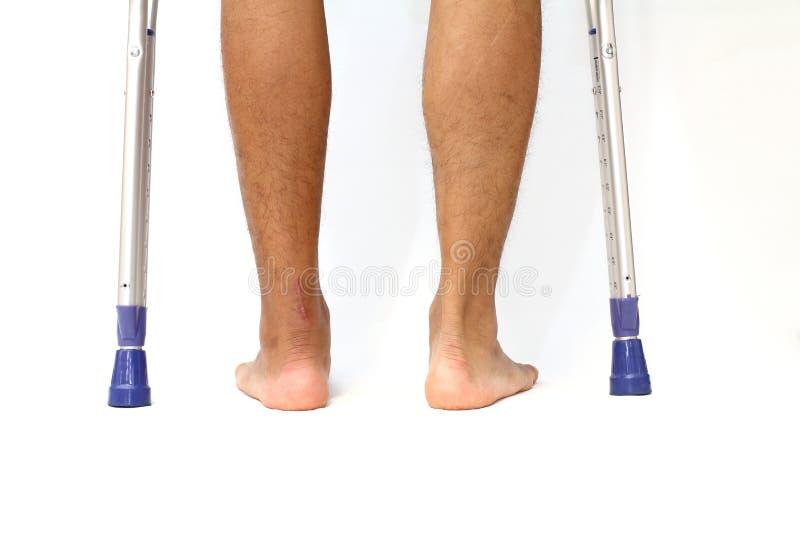 Verrichtingslitteken van Achilles peesbreuk en crutchs royalty-vrije stock afbeelding
