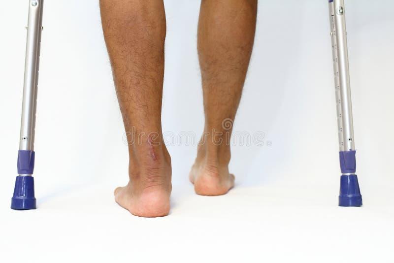 Verrichtingslitteken van Achilles peesbreuk en crutchs stock foto's