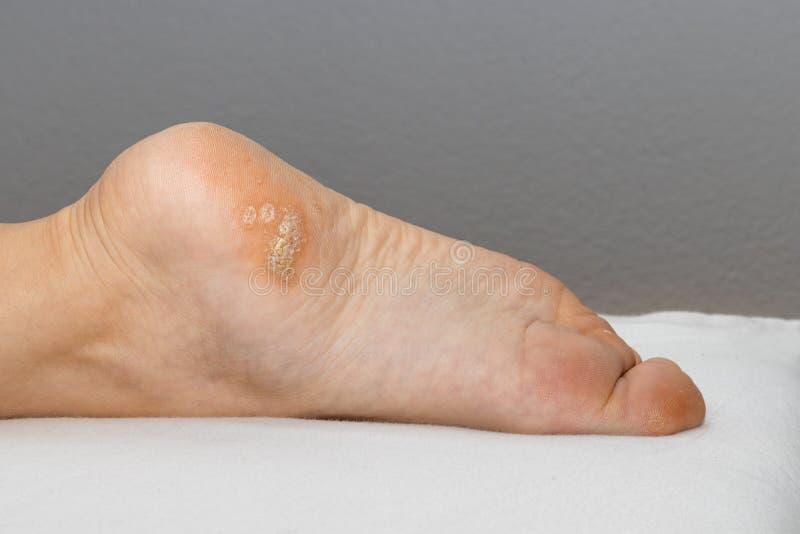 Hpv verrue pied - Le papillomavirus chez lhomme.