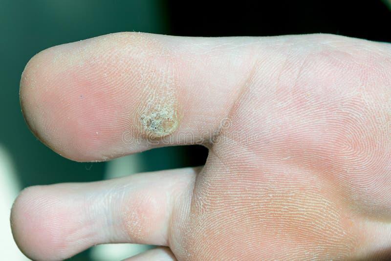 Verruga plantar en el dedo gordo El negro visible puntea verrugas imagen de archivo