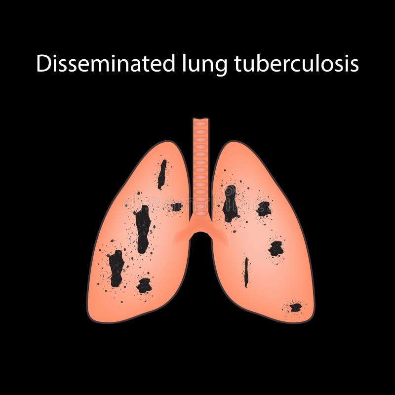 Verspreide tuberculose Vectorillustratie op een zwarte achtergrond stock illustratie