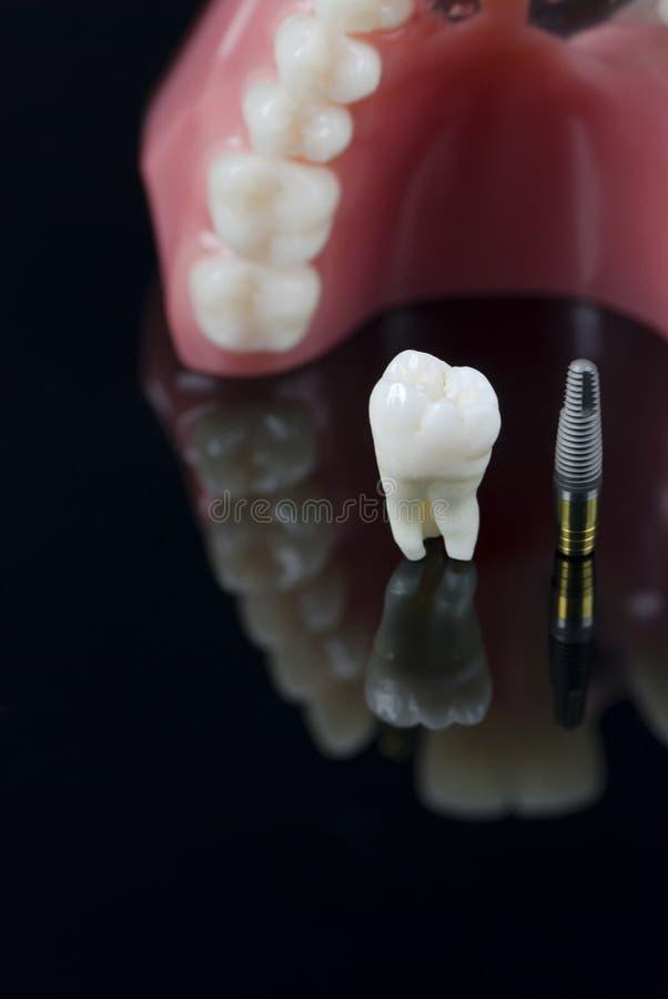 Verstandskies, Implant en tandenmodel. stock afbeeldingen