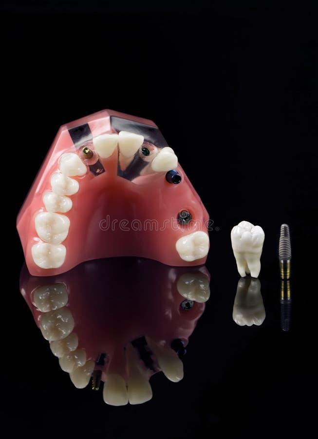 Verstandskies, Implant en tandenmodel royalty-vrije stock afbeeldingen
