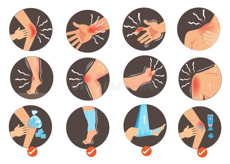 verstuikingen vector illustratie