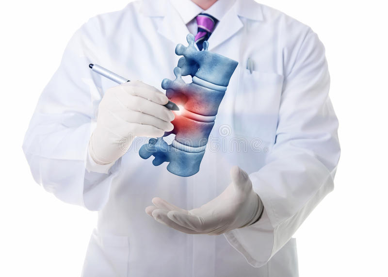 Vertebrae illness. Very high resolution 3d rendering of four human vertebae royalty free illustration