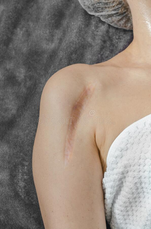 Vertical keloid scar after bone surgery on a woman's shoulder. Vertical keloid scar after bone surgery on woman shoulder stock image
