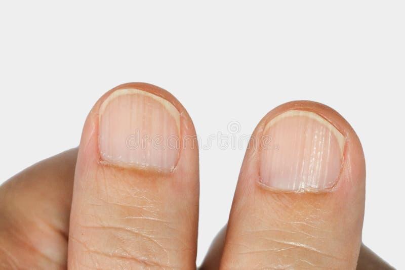 Vertical ridges on the fingernails. Symptoms deficiency vitamins stock photos