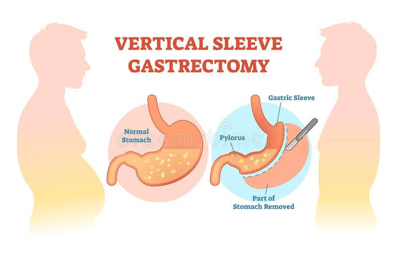 Vertical Sleeve Gastrectomy medical vector illustration diagram with stomach surgical cut. Anatomical diagram stock illustration