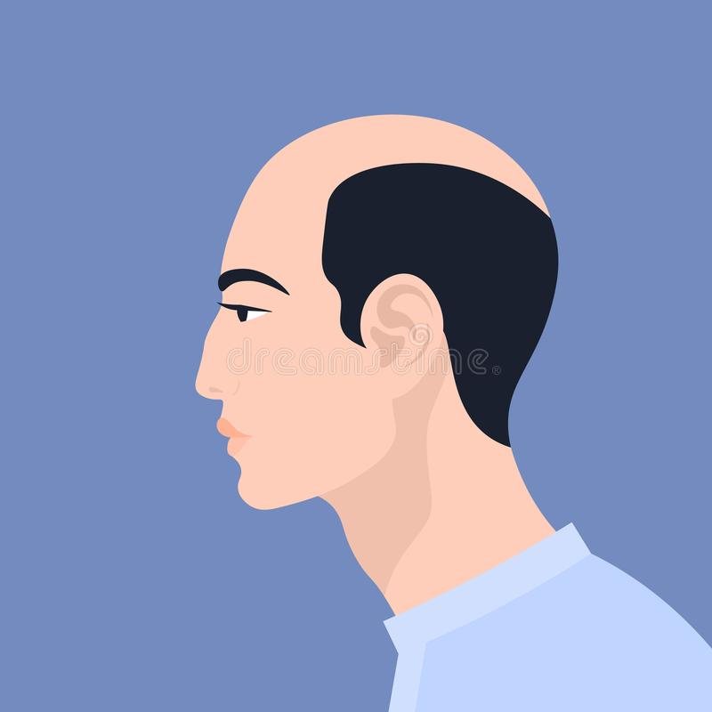 Verticale d'un homme dans le profil Alopécie Illustration plate de vecteur illustration libre de droits