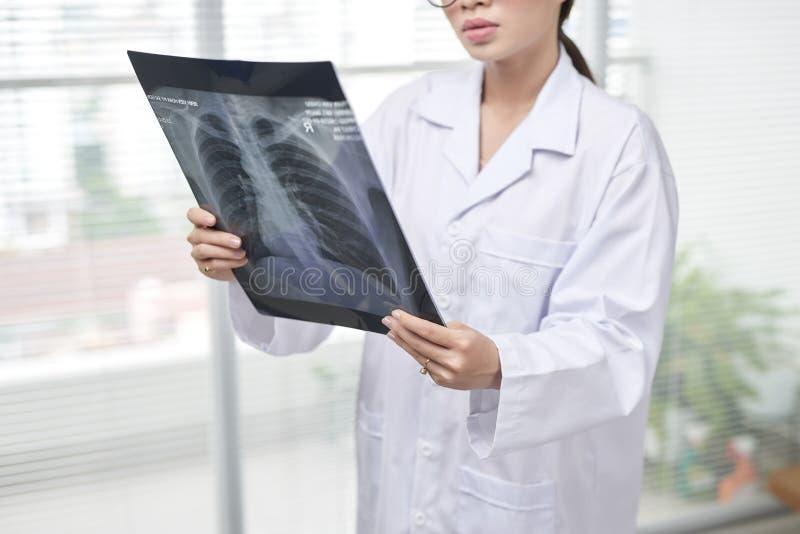 Vertrouwelijke vrouwelijke arts die een röntgenfoto van de ribkooi nauwkeurig heeft onderzocht royalty-vrije stock afbeelding