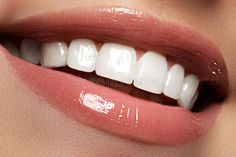 Vervollkommnen Sie Lächeln vor und nach Bleiche Zahnpflege und werden weiß stockfotografie