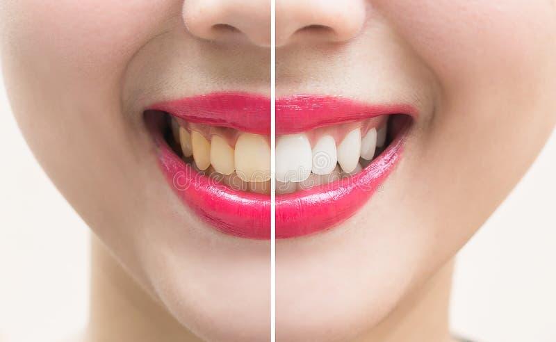 Vervollkommnen Sie Lächelnzähne vor und nach Bleiche Weiß werden der Zähne lizenzfreie stockfotos