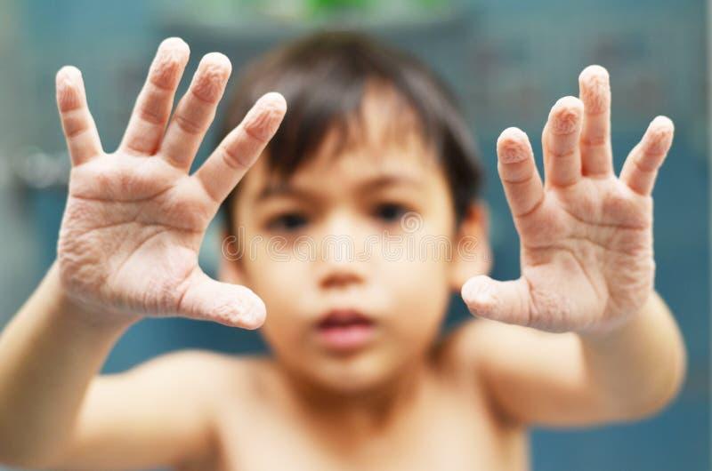 Verwelkte Hand des kleinen Jungen Vertretung stockbilder