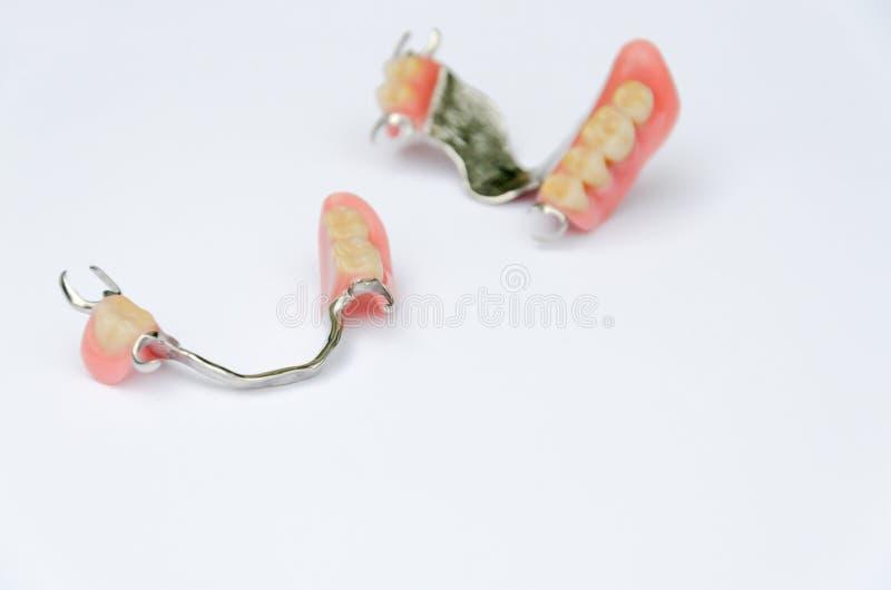 Verwijderbare greepprothese op de hogere en lagere kaak stock afbeeldingen