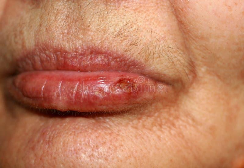 Verwitterte Lippen Fieber auf der Lippe herpes stockfoto