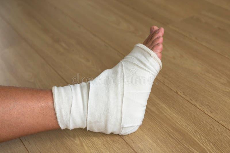 Verwond mannelijk been, kruisvormig verband op de enkelverbinding stock afbeeldingen