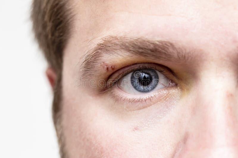 Verwond oog De wond op het hogere ooglid die, die en na het ondergaan van een ongeval kneuzen zwellen royalty-vrije stock afbeeldingen