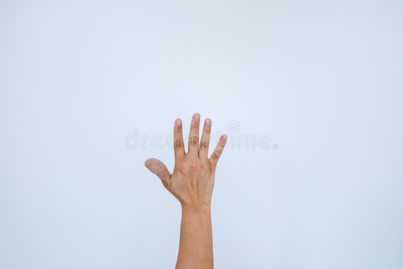Verwonde pijnlijke vinger met wit verband De hand is verwond door het ongeval en het tonen van duim De duim is verpakt met a stock foto