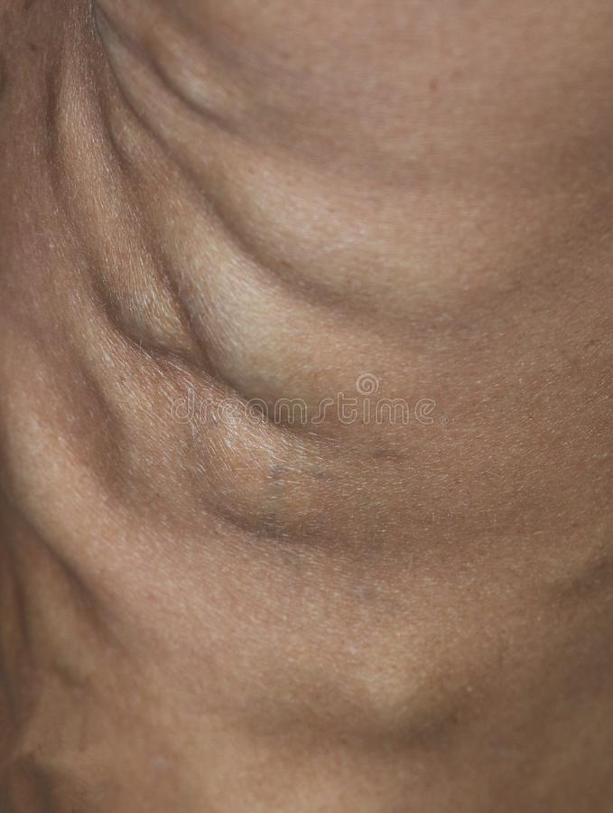 Close up of varicaose veins stock photo