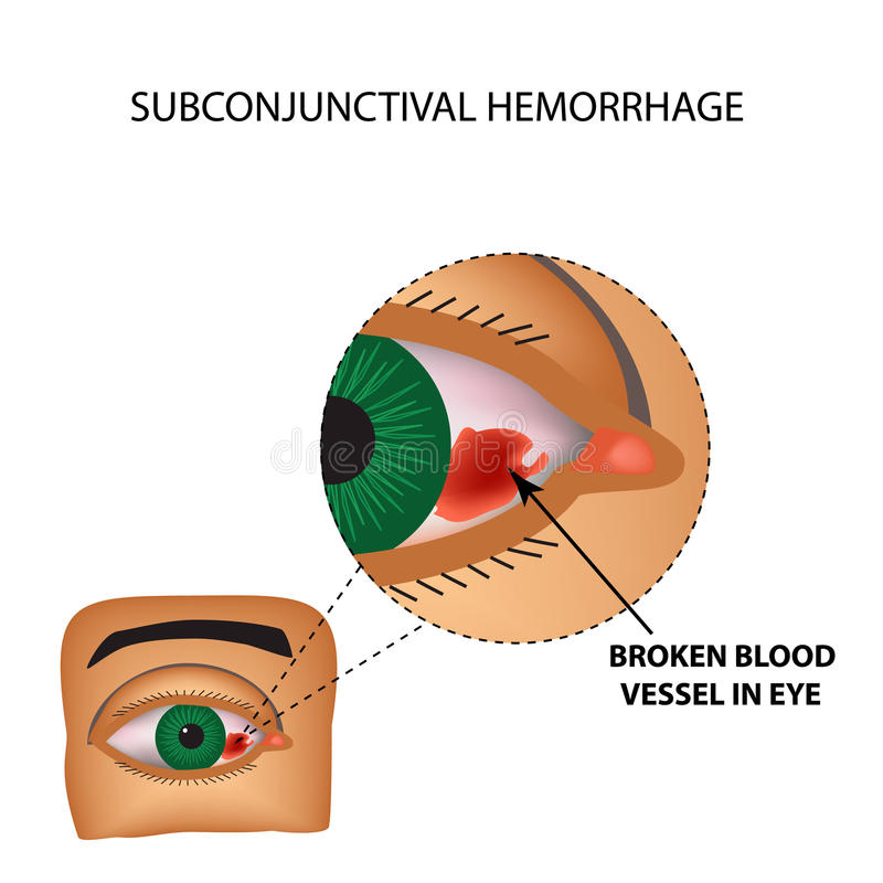 The vessel in the eye burst. Inflammation and redness. The structure of the eye. Infographics. Vector illustration vector illustration