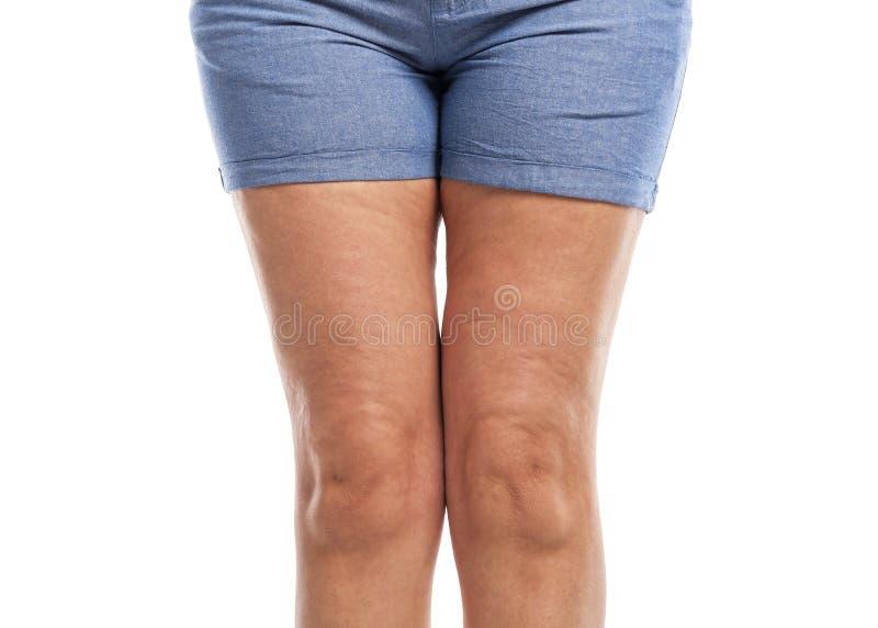 Vet en cellulite op de benen stock afbeeldingen