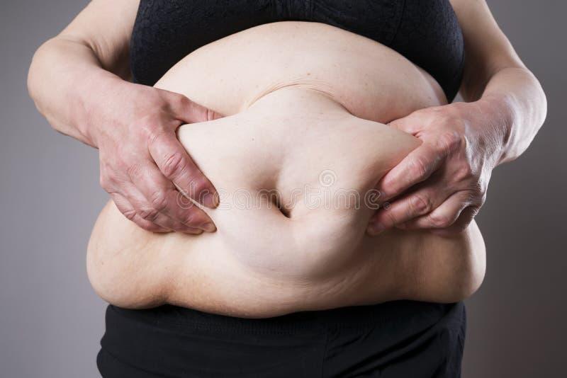 Vet vrouwelijk lichaam Vettige buikclose-up stock foto
