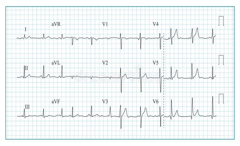 Vetor da carta do cardiograma do coração Ilustração do formulário de onda no gráfico verificado de Ecg Ritmo do coração, isquemia ilustração do vetor