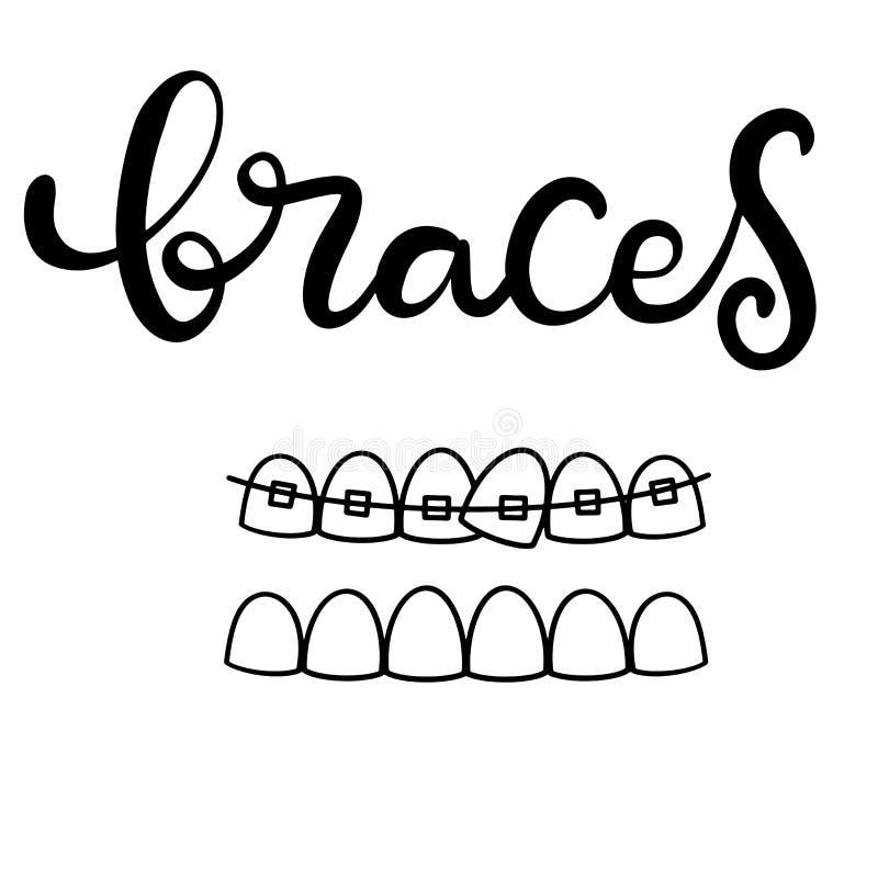 Vetor que rotula a ilustração sobre o tratamento ortodôntico e cuidados médicos dentais com a imagem das cintas nos dentes EPS10 ilustração stock
