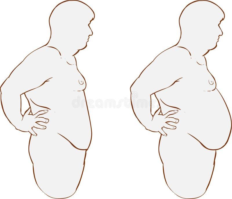 Vette buik before and after behandeling royalty-vrije illustratie