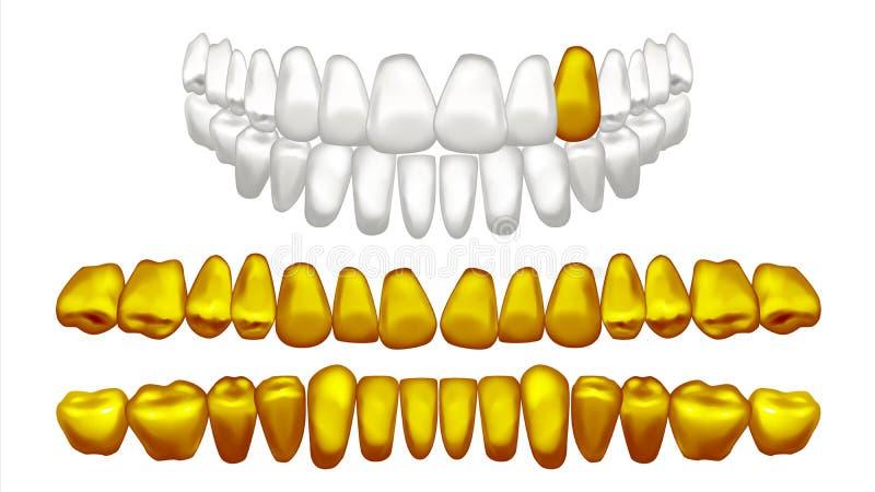 Vettore del dente dell'oro Denti umani dorati del metallo Pirata anziano Illustrazione isolata realistica illustrazione di stock